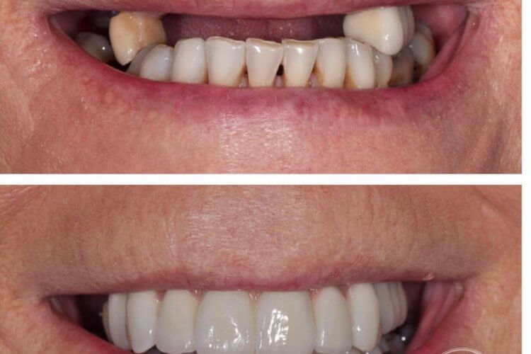 dental implants Cardiff case 1